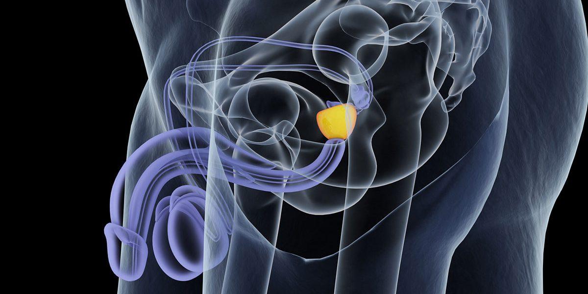nuova terapia ormonale su il neoformazione alla prostata